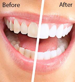 Cosmetic Dental Services St Paul Minnesota